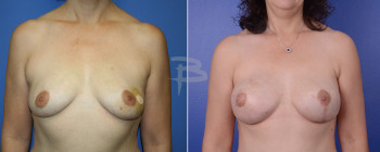 Front: 47 year old-Left breast cancer- left mastectomy and contralateral prophylactic mastectomy with immediate implant reconstruction.