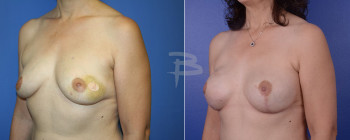 Oblique: 47 year old-Left breast cancer- left mastectomy and contralateral prophylactic mastectomy with immediate implant reconstruction.