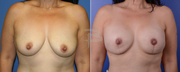 Front: 47 year old- Bilateral Nipple Areola Sparing Mastectomy And Reconstruction With Gel Implants