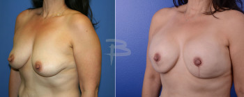 Side: 47 year old- Bilateral Nipple Areola Sparing Mastectomy And Reconstruction With Gel Implants
