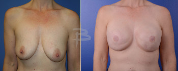 Front: 40 year old-bilateral  mastectomy with implant reconstruction