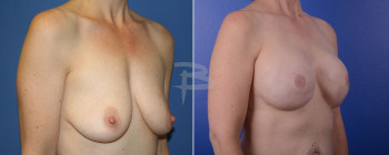 Side: 40 year old-bilateral  mastectomy with implant reconstruction