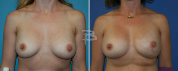 35 Year Old- Left Nipple Areola Sparing Mastectomy And Right Breast Augmentation With Gel Implants