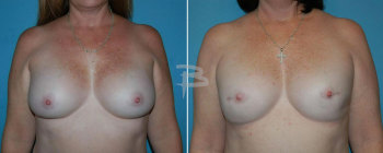 49 year old-bilateral nipple areola sparing mastectomy and reconstruction with gel implants