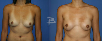 28 year old-bilateral nipple areola sparing mastectomy with fat transfer and reconstruction with gel implants