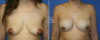 34 yr old- bilateral areola sparing mastectomy and reconstruction with gel implants