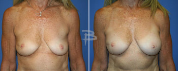 59 year old- right partial mastectomy and left breast augmentation with gel implants