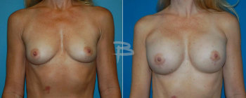 47 Year Old BRCA Positive Patient- Bilateral Nipple Areola Sparing Mastectomy And Reconstruction With Gel Implants