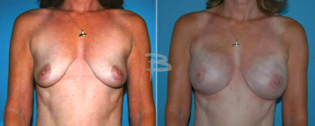 53 Year Old-bilateral Skin Sparing Mastectomy And Reconstruction With Gel Implants