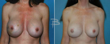 39 year old-mastectomy right breast immediate reconstruction right breast with a gel implant placed and right ni pple areola reconstruction. The left breast had previous augmen tation.