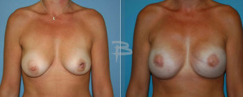 38 year old- areola sparing left mastectomy, nipple areola sparing right mastectomy with gel implants