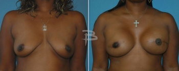 49 year old- left skin-nipple areola skin sparing mastectomy, and right left skin-nipple areola sparing skin mastecto my with gel implants