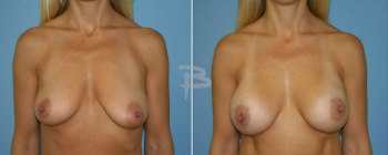 41 year old-Implant reconstruction left breast with gel implant and right breast augmentation with gel implant