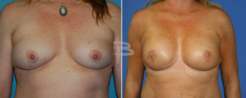 40 year old-bilateral nipple areola sparing mastectomy and reconstruction with gel implants