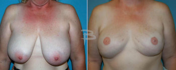 40 year old-bilateral skin sparing mastectomy and reconstruction and nipple areola reconstruction with gel implants.