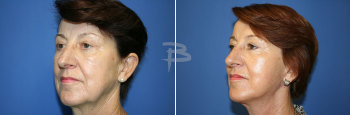 Side :- 62 year old-face and neck lift, temporal brow lift, upper and lower eyelids and fat transfer