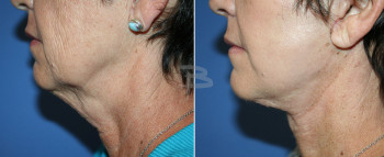 62 year old- 5 weeks after Simplicity neck lift