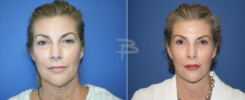 Front: - 57 year old-Face and neck lift, upper and lower eyelids, fat transfer and upper and lower fascial lip grafts