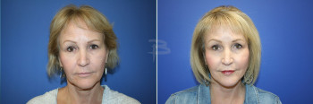Front - 60 year old-Face and neck lift, fat transfer, lip lift, upper lip fascial lip grafts