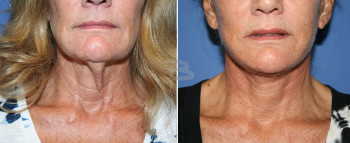65 year old-  4 weeks after Simplicity neck lift