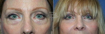 70 year old- 6 weeks upper and lower eyelids