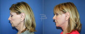 Side - 70 year old-Face and neck lift, upper and lower eyelids, upper lip fascial lip graft, fat transfer