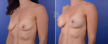 Side: 41 year old-Bilateral circumareolar (Benelli/donut) mastopexy using silicone implants.
