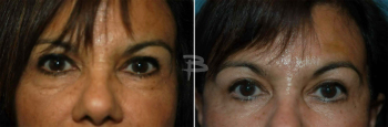 62 year old- endoscopic brow lift and lower eyelids