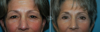 67 year old-upper and lower eyelids
