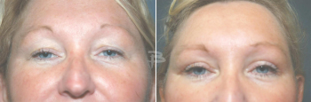 46 year old- upper eyelids