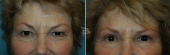 70 year old- upper eyelids