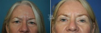 63 year old-upper eyelids and temporal brow lift