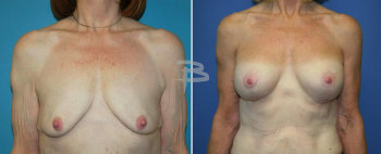 Front :- 58 year-old -bilateral brachioplasty and bilateral circumvertical (lollipop) mastopexy using silicone implants