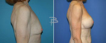 Side :- 58 year-old -bilateral brachioplasty and bilateral circumvertical (lollipop) mastopexy using silicone implants