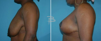 Side :- 37 year old - bilateral circumvertical (lollipop) mastopexy using saline Implants