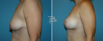 Side :- 39 year old -bilateral circumareolar (Benelli/donut) mastopexy using silicone implants