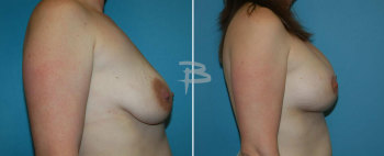 Side :- 32 year old -bilateral circumareolar (Benelli/donut) mastopexy using silicone implants