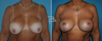 Front :- 63 yearold-bilateral circumvertical (lollipop) mastopexy after removal and replacement of silicone implants