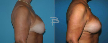 Side :- 63 yearold-bilateral circumvertical (lollipop) mastopexy after removal and replacement of silicone implants