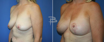 Side :- 44 year old- bilateral circumvertical (lollipop) mastopexy using saline implants""