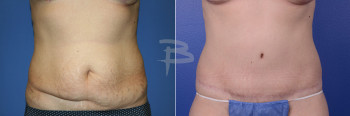 Front: 47 year old-abdominoplasty with liposuction to flanks