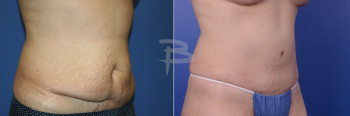 Oblique: 47 year old-abdominoplasty with liposuction to flanks