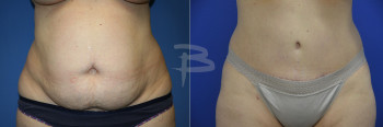 Front: 44 year old-Abdominoplasty with liposuction to flanks