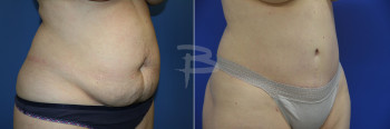 Side:  44 year old-Abdominoplasty with liposuction to flanks