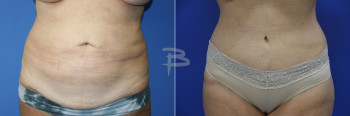Front: 55 year old- Abdominoplasty with liposuction to flanks