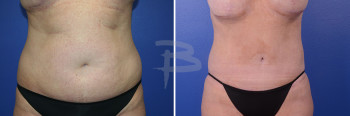 Front: 41 year old- extended abdominoplasty with liposuction to flanks