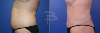 Side: 41 year old- extended abdominoplasty with liposuction to flanks