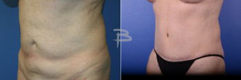 Side: 56 year old- abdominoplasty with liposuction to abdomen and flanks