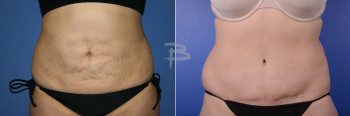 Front: 33 year old- abdominoplasty with liposuction to flanks