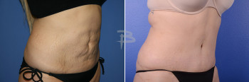 Side: 33 year old- abdominoplasty with liposuction to flanks